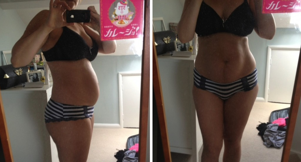 My body after pregnancy - Losing weight after pregnancy